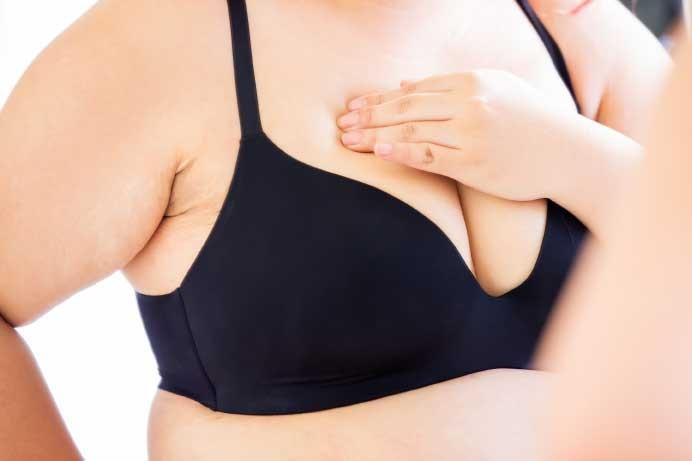Obesidade eleva risco de câncer de mama